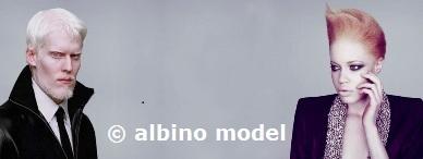 albino model,albinos